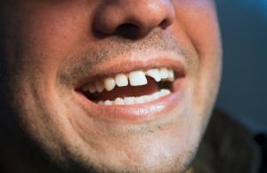 broken-tooth